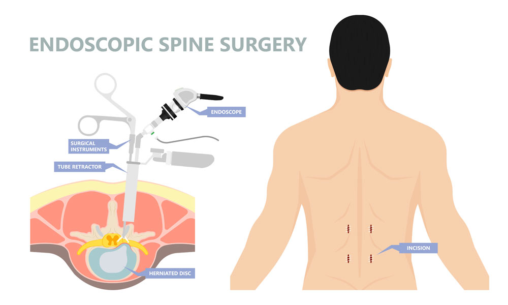 2020 11 23 showing the concept of Minimally Invasive Lumbar Discectomy