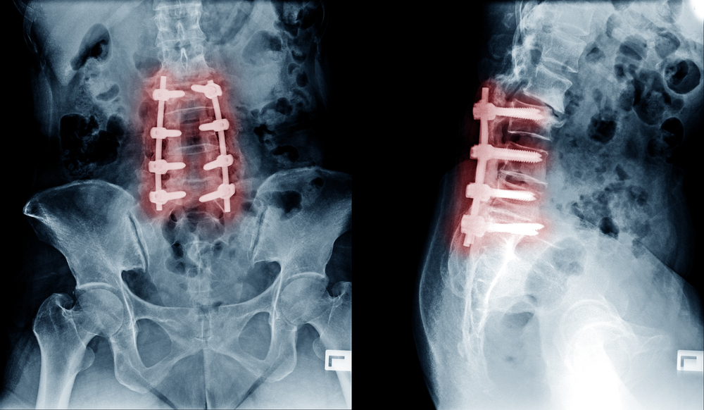 shutterstock 545456884 showing the concept of Spinal Fusion